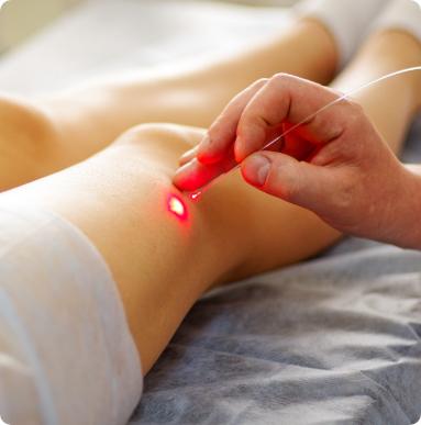 Le laser vasculaire à Metz et Hagondange